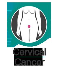 Cervical cancer information