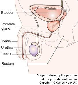 Prostate-1