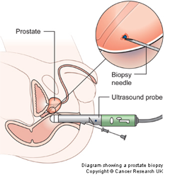 prostate-tests