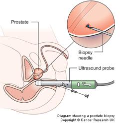 prostate-tests