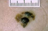 spreading-melanoma