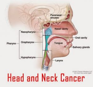 does hpv cause head and neck cancer)